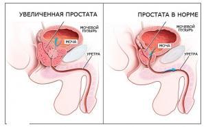 Основные функции предстательной железы.